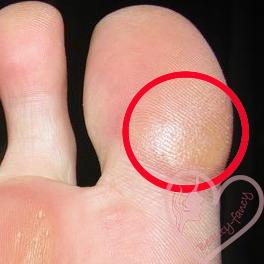 мозоль на пальчике