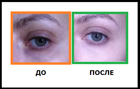 До и После применения консилера Клиник