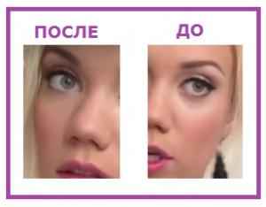 До и После применения консилера