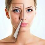 Уход за проблемной кожей лица. Возможные причины и комплексный подход к лечению