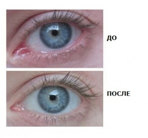 Капли Иридина: до и после