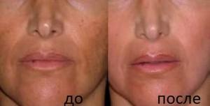 мезороллер для лица до и после фото
